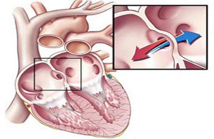 Как выглядит сердечная аневризма