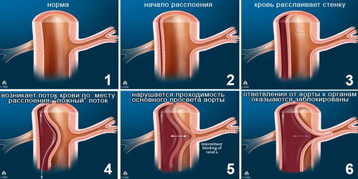 Классификация аневризмы сердечной аорты