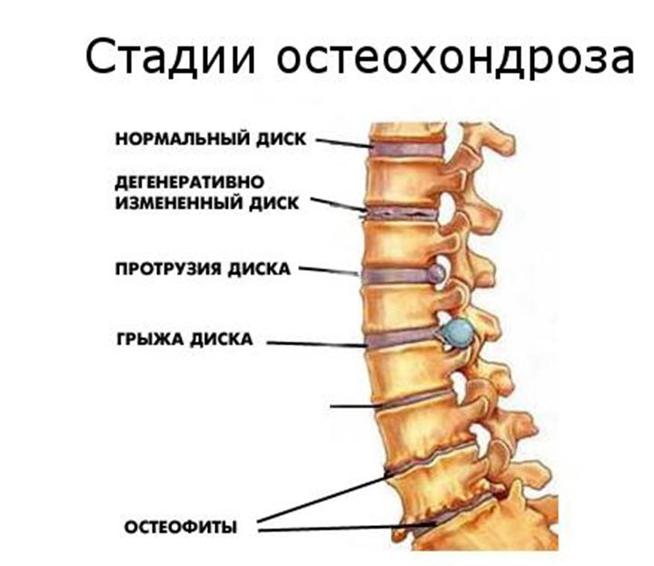 Стадии остеохандроза
