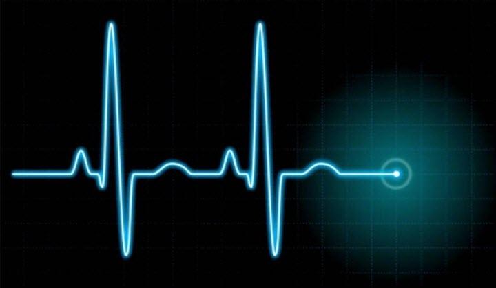 Остановка сердца