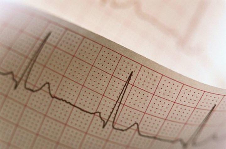 ЭКГ-диагностика