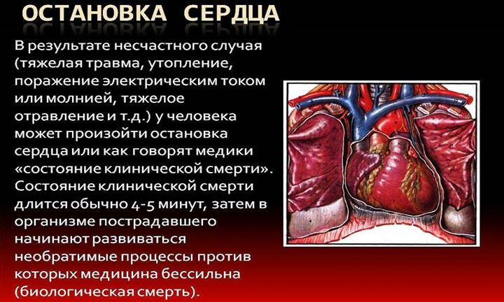 Что такое остановка сердца