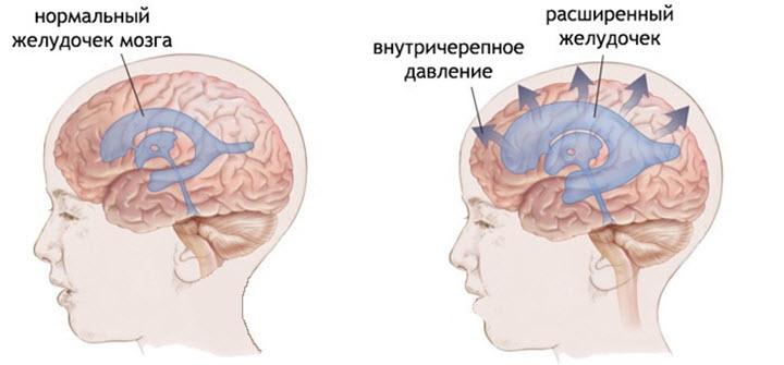 Схема патологии