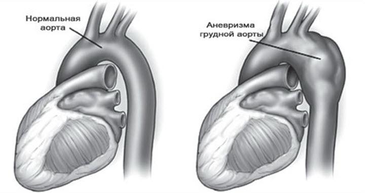 Как выглядит аневризма аорты