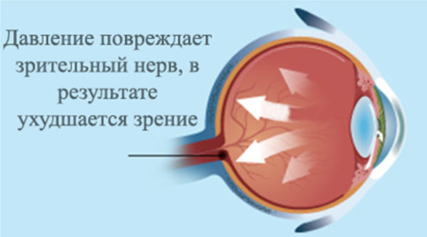 Ночные линзы которые восстанавливают зрение
