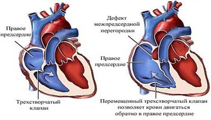 Нормальное сердце и сердце с патологией