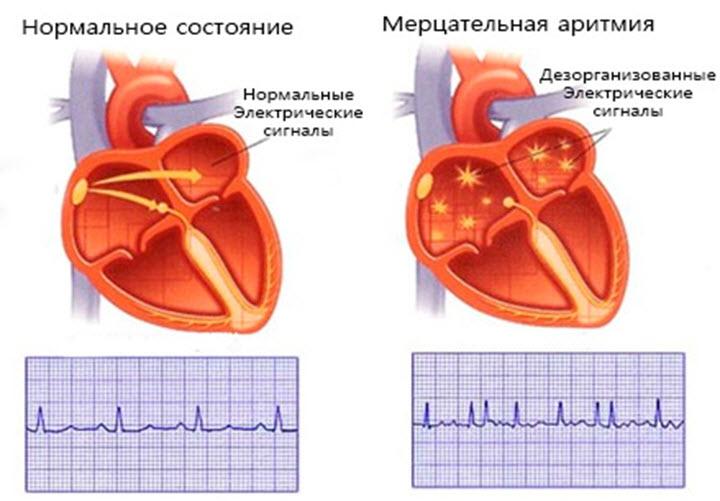 Можно ли вылечить аритмию сердца навсегда