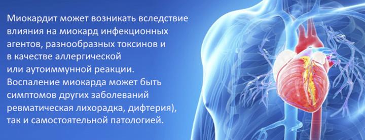 Возникновение миокардита