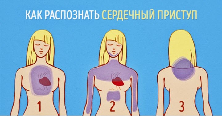 Отличие сердечного приступа