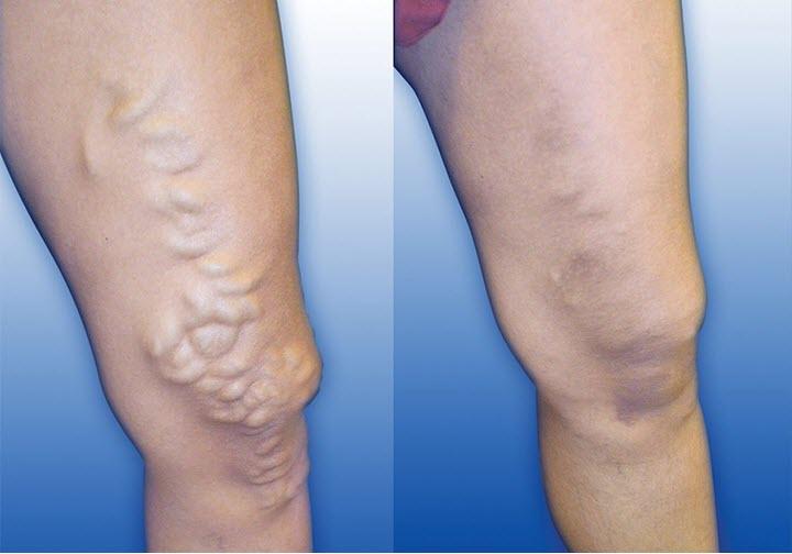 Ноги до лечения и после