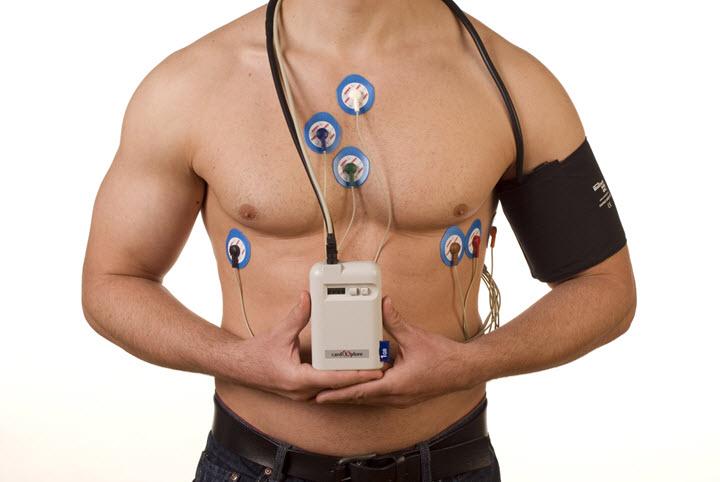 суточное мониторирование сердца