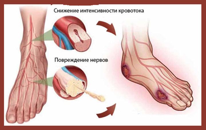 Снижение интенсивности кровотока