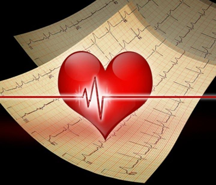 ЭКГ сердечных ритмов