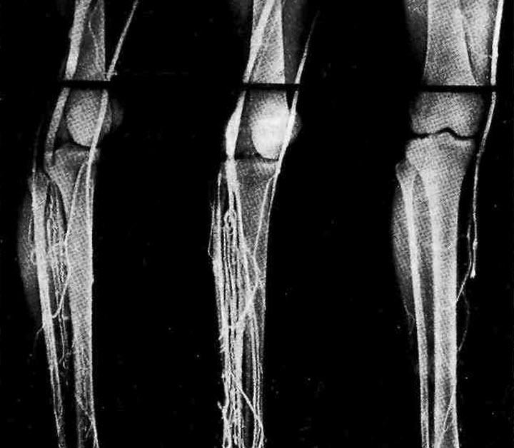 Рентгеноконтрастная флебография