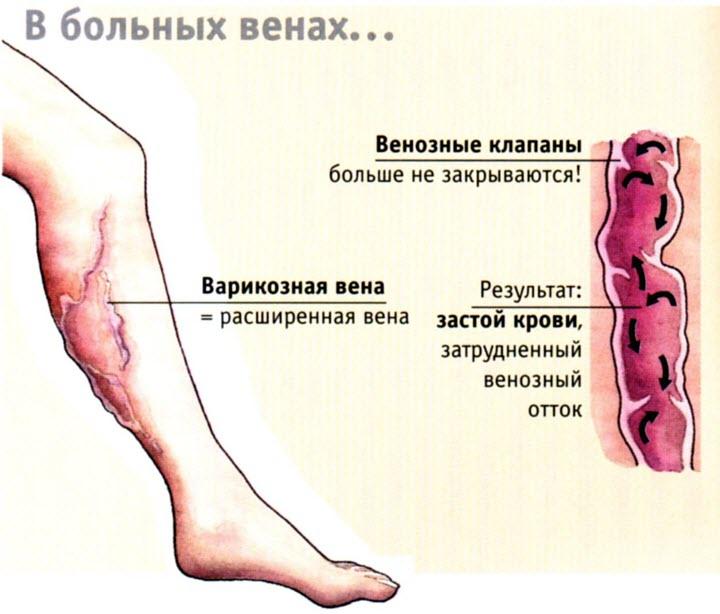 Что такое варикоз