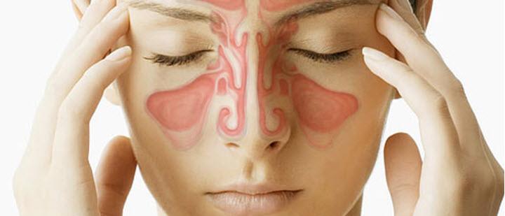 Синусит может стать причиной васкулита