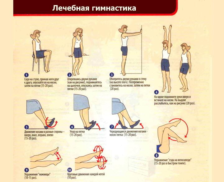 Комплекс упражнений при варикозе ног