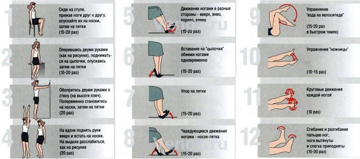 Стадии варикоза нижних конечностей фото описание и лечение