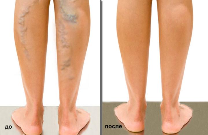 Ноги до и после операции