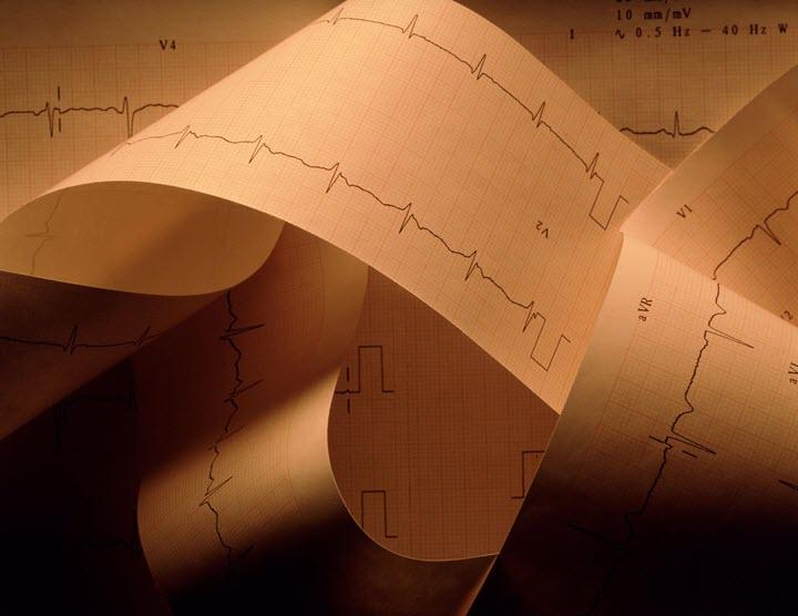 Диагностика кардиопатии
