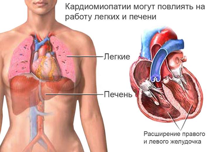 На что влияет кардиопатия