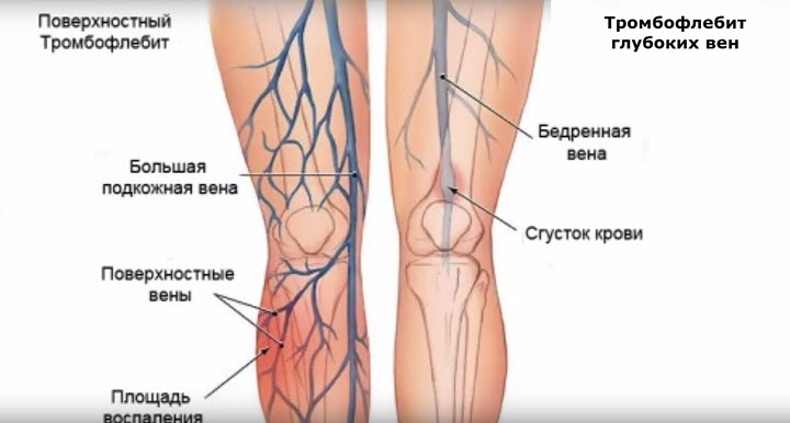 Схема развития тромбофлебита