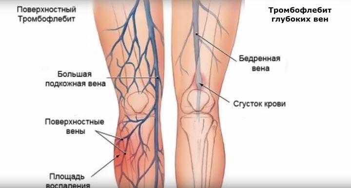 Тромб на ноге лечение в домашних условиях 19