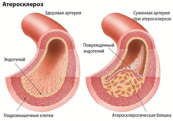 теросклероз сосудов