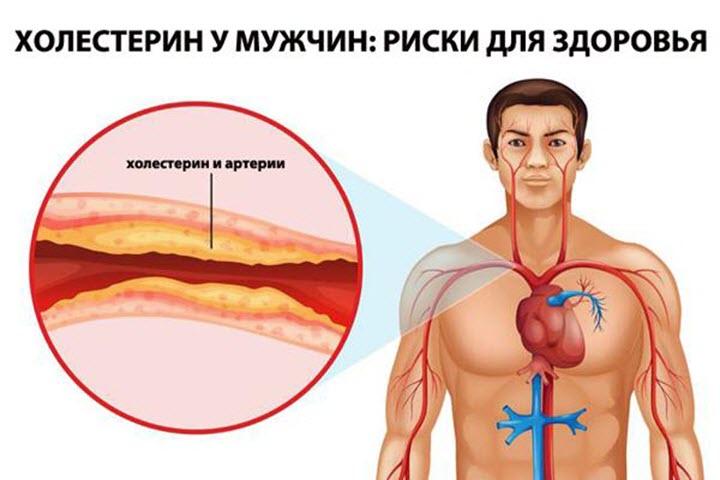 Риски для здоровья мужчины
