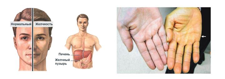 Симптомы повышенного билирубина