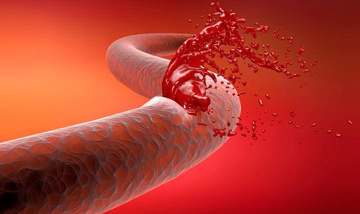 Травмы с потерей крови