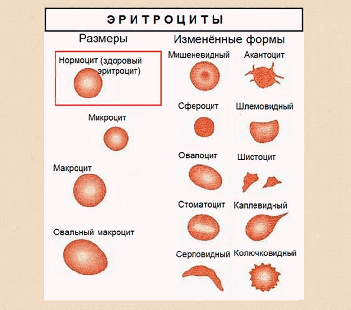Виды эритроцитов