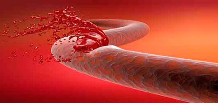 Анемия из-за кровотечения