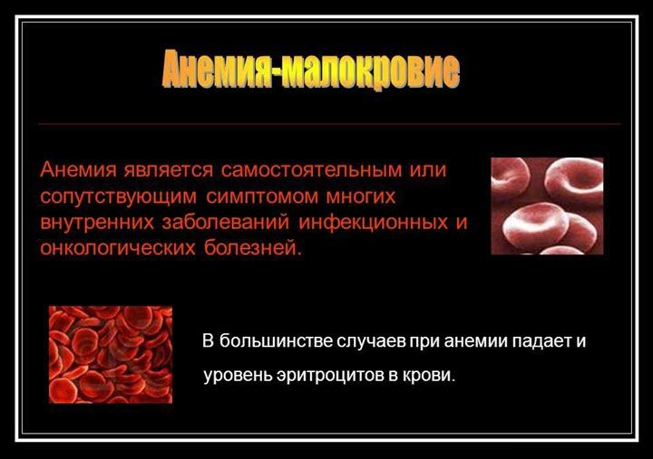 Анемия как симптом и заболевание