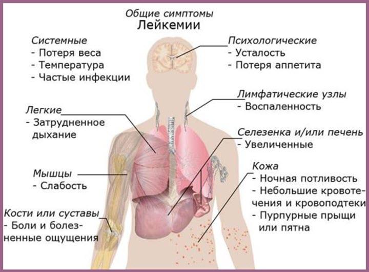 Симптомы лейкоза