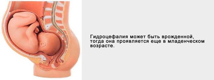 Врожденная гидроцефалия