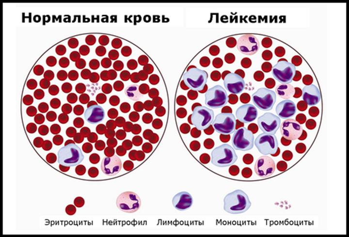 Что такое лейкоз