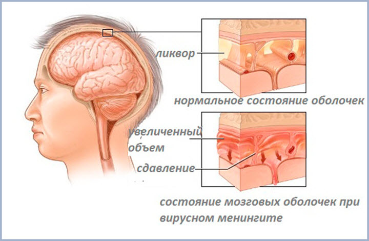 Мозговые оболочки при менингите