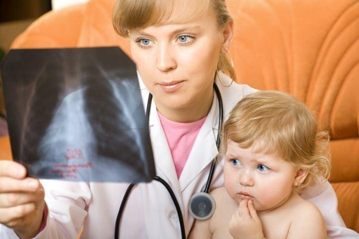 Рентген при подозрении на пневмонию