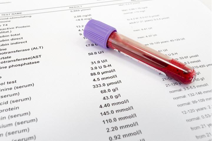Расшифровка анализа крови mid