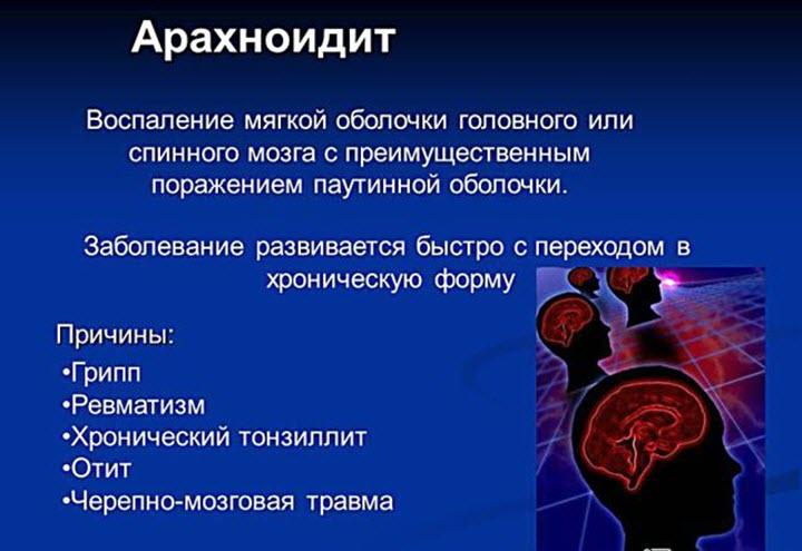 Арахноидит