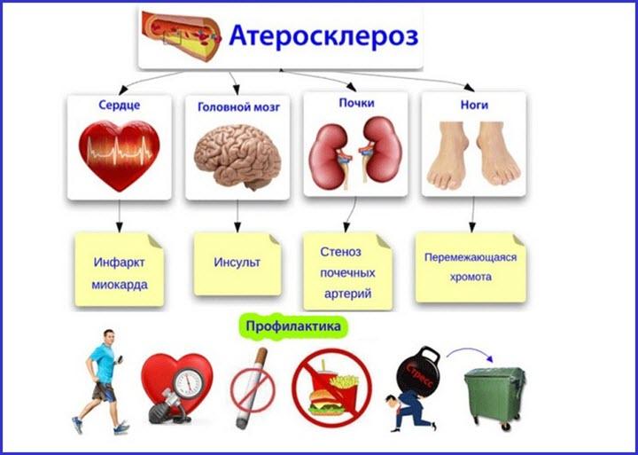 Виды и профилактика атеросклерозов