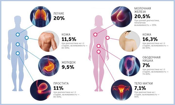 Процентное соотношение раковых заболеваний